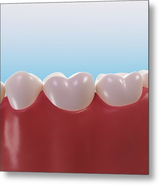 Healthy Teeth, Artwork Metal Print by Sciepro