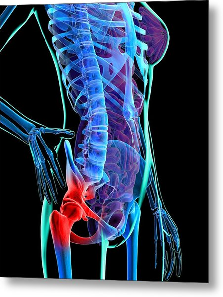 Hip Pain, Conceptual Artwork Metal Print by Roger Harris