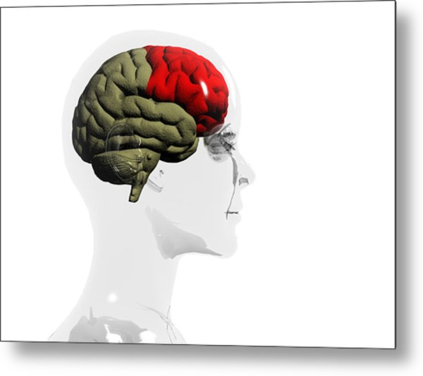 Human Brain, Frontal Lobe Metal Print by Christian Darkin