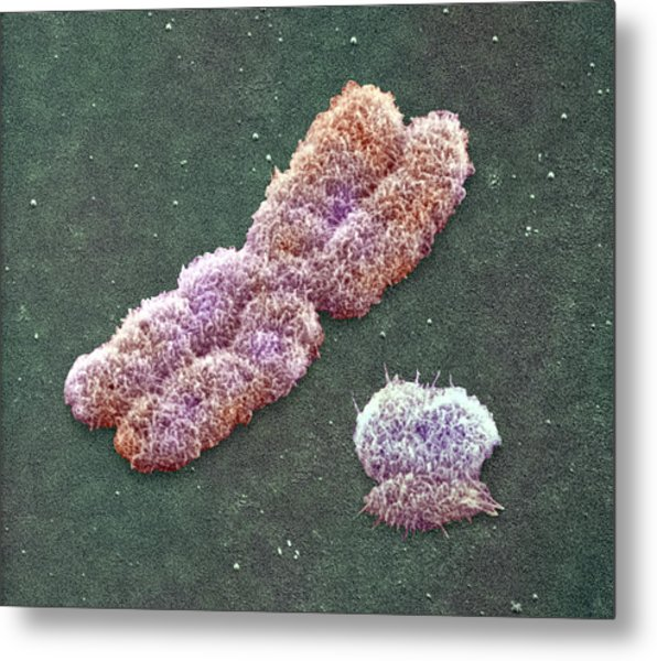 Male Sex Chromosomes, Sem Metal Print by Power And Syred