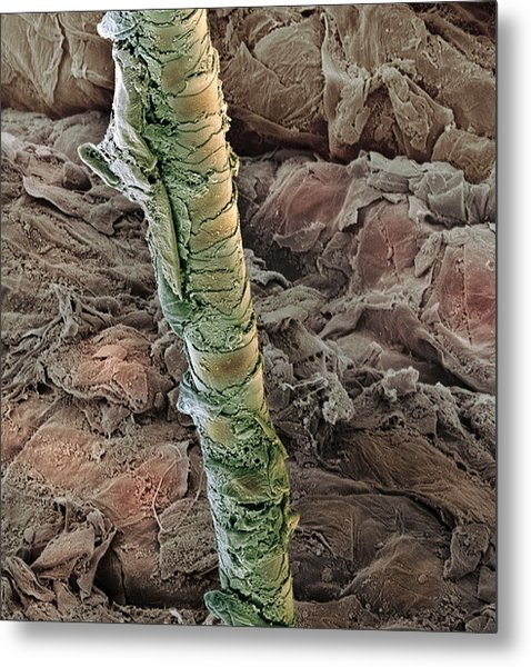 Ear Canal, Sem Metal Print by Steve Gschmeissner