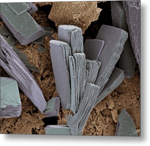 Blood Clot Crystals, Sem Metal Print by Steve Gschmeissner