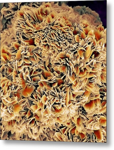 Kidney Stone Crystals, Sem Metal Print by Steve Gschmeissner
