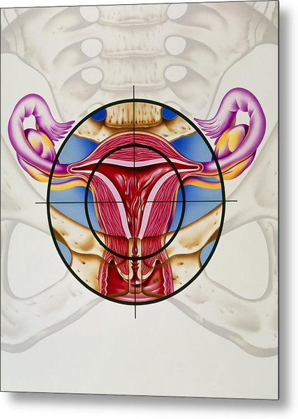 Artwork Of The Uterus During Menstruation Metal Print by John Bavosi