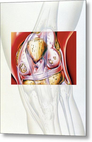 Artwork Showing Rheumatoid Arthritis Of The Knee Metal Print by John Bavosi