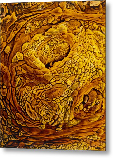 Coloured Sem Of Adenocarcinoma Of The Human Uterus Metal Print by Professors P.m. Motta & S. Makabe