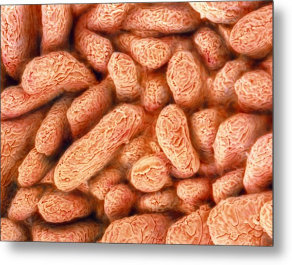 Coloured Sem Of Villi In The Small Intestine Metal Print by Steve Gschmeissner