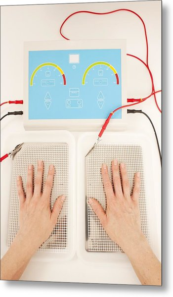 Iontophoresis For Excess Sweating Metal Print