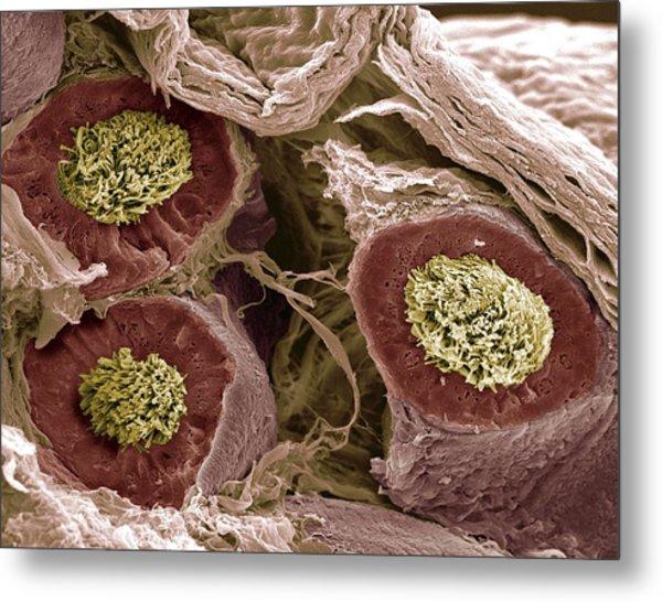 Maturing Sperm, Sem Metal Print by Steve Gschmeissner