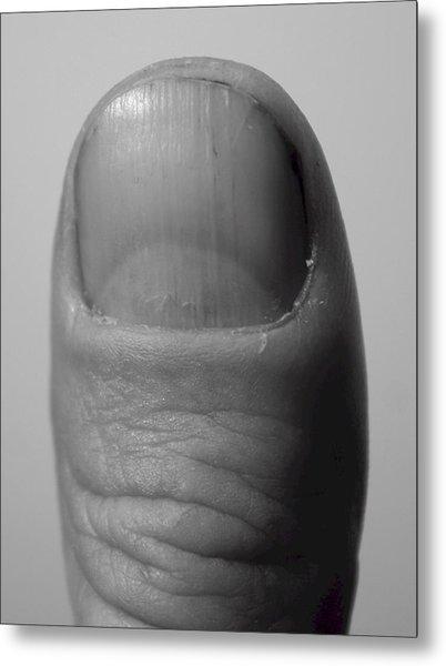 Thumb Metal Print