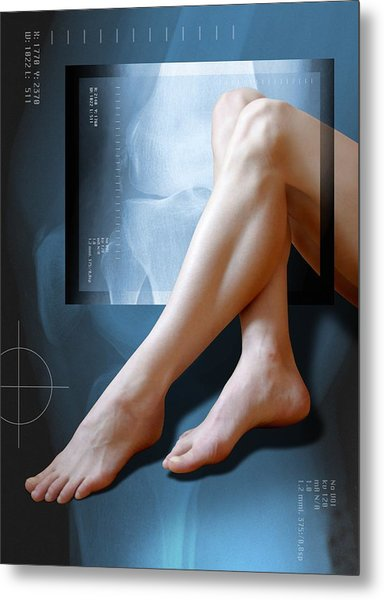 Woman's Legs, With Knee X-ray Metal Print by Miriam Maslo