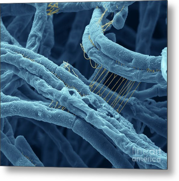 Anthrax Bacteria Sem Metal Print