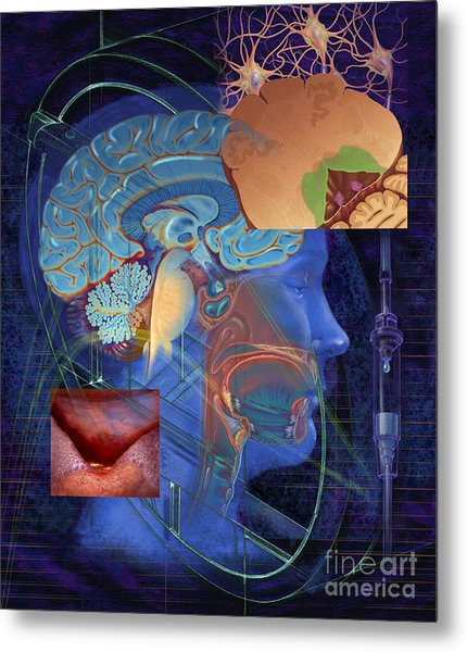 Chemotherapy-induced Nausea And Vomiting Metal Print