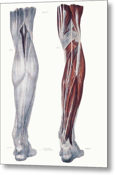 Leg Nerves Metal Print