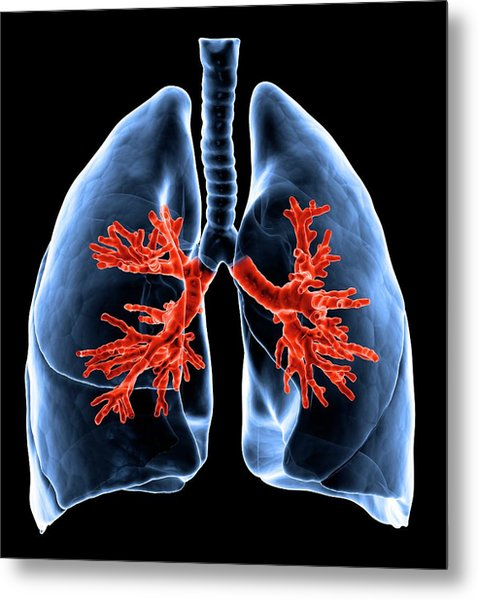 Healthy Lungs, Artwork Metal Print by Science Photo Library - Andrzej Wojcicki