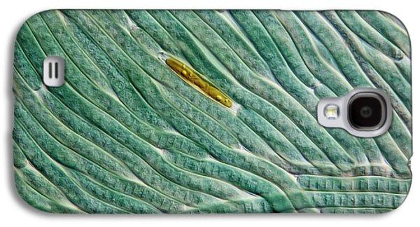 Cyanobacteria And Diatom Galaxy S4 Case