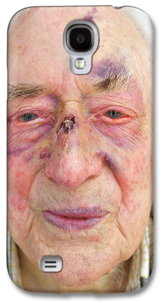 Elderly Man's Face After Fall Galaxy S4 Case