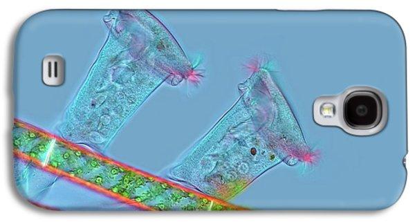 Epistylis Protozoa Galaxy S4 Case