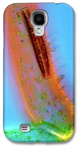Epithemia Diatom Galaxy S4 Case by Marek Mis