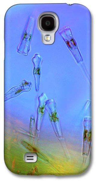 Gomphonema Diatoms Galaxy S4 Case