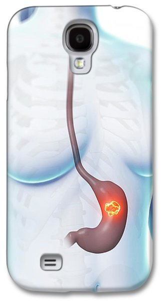 Human Stomach Ulcer Galaxy S4 Case