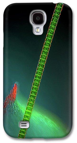 Hyalotheca Desmid Galaxy S4 Case