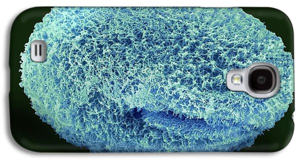 Isotricha Ciliate Protozoan Galaxy S4 Case by Steve Gschmeissner