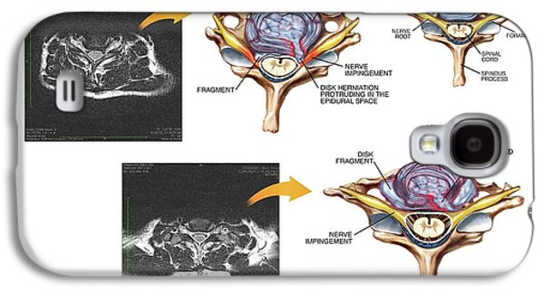 Slipped Discs In The Cervical Spine Galaxy S4 Case by John T. Alesi