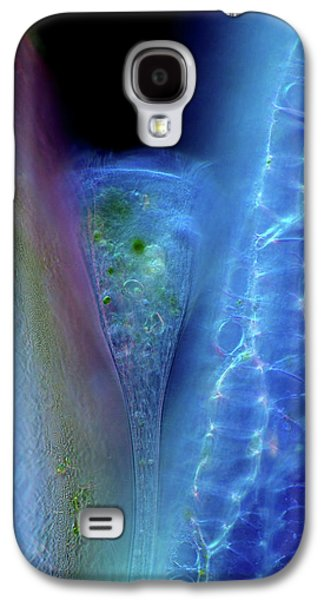 Stentor Protozoan And Sphagnum Moss Galaxy S4 Case by Marek Mis