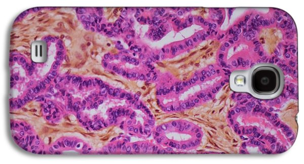 Thyroid Cancer Galaxy S4 Case by Steve Gschmeissner