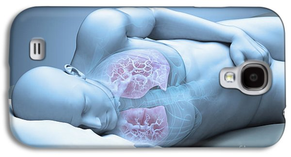 Sleep Apnea Galaxy S4 Case by Science Picture Co