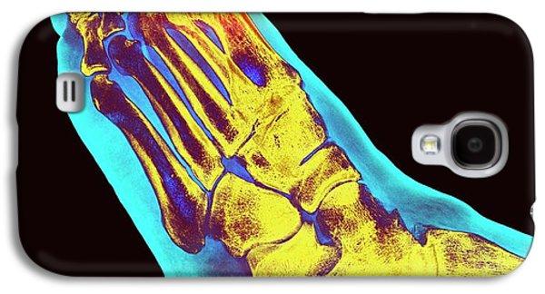 Degenerative Foot Deformation Galaxy S4 Case
