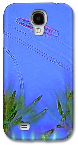 Diatom And Green Algae Galaxy S4 Case by Marek Mis