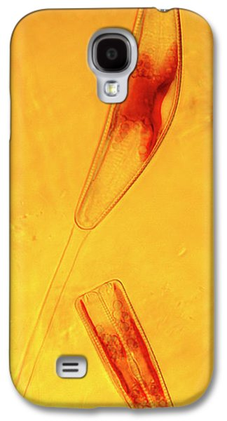 Diatoms Galaxy S4 Case by Marek Mis
