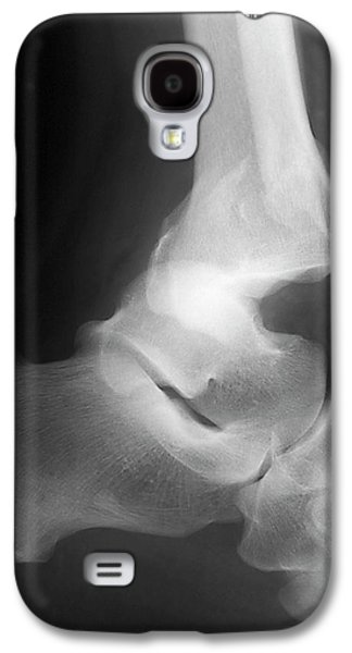 Fractured Ankle Galaxy S4 Case by Zephyr