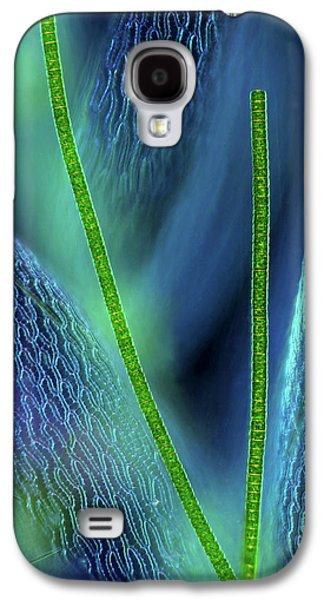 Desmids On Sphagnum Moss Galaxy S4 Case