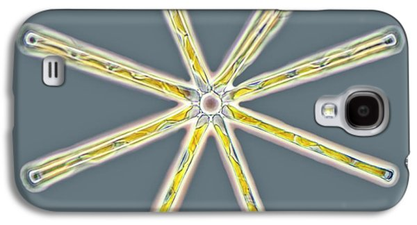 Asterionella Diatoms Galaxy S4 Case by Gerd Guenther