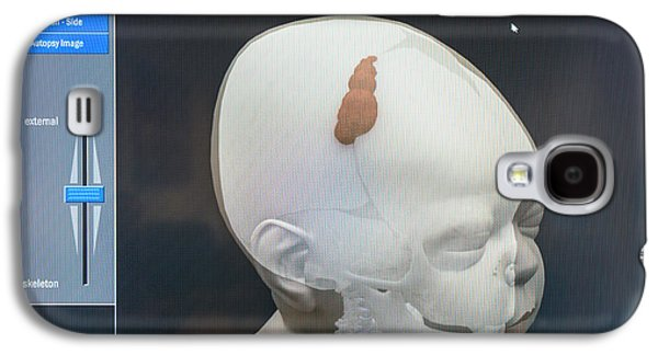 3d Virtual Autopsy Of A Child Galaxy S4 Case