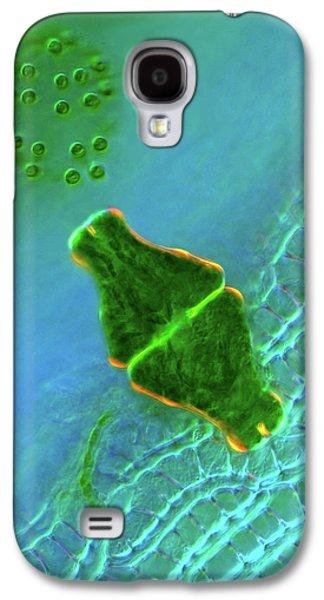 Desmid And Dictyosphaerium Green Algae Galaxy S4 Case