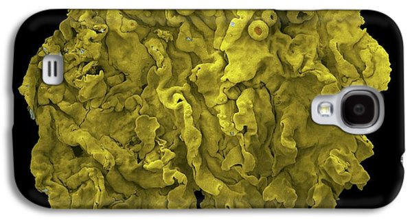 Lichen Galaxy S4 Case