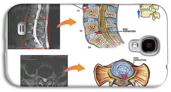 Slipped Disc In The Lumbar Spine Galaxy S4 Case by John T. Alesi