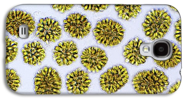 Synura Golden Algae Galaxy S4 Case