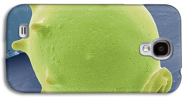Foraminiferan Galaxy S4 Case