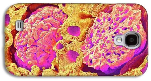Kidney Glomeruli Galaxy S4 Case by Susumu Nishinaga