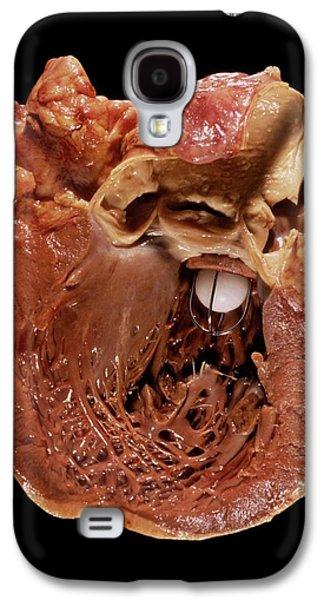 Artificial Heart Valve Galaxy S4 Case by Pr. M. Forest - Cnri
