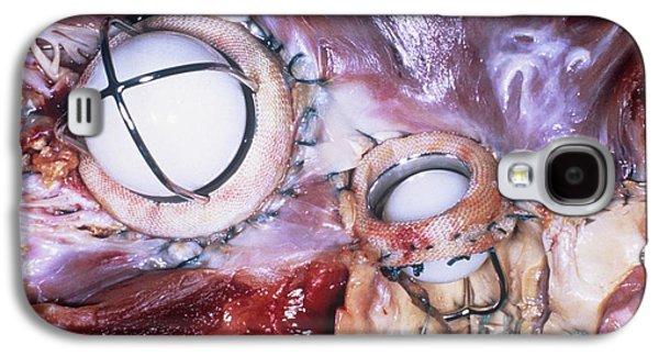Artificial Heart Valves Galaxy S4 Case by Pr. Ch. Cabrol - Cnri