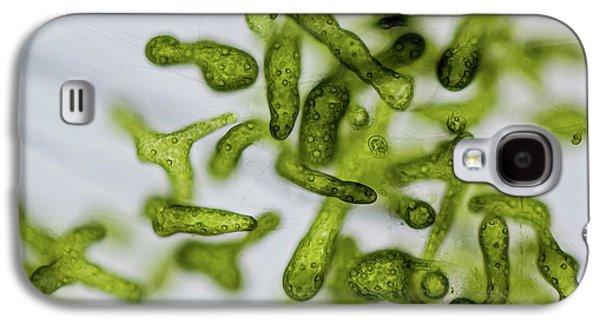 Blastophysa Marine Green Alga Galaxy S4 Case
