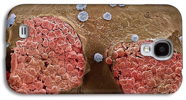 Bone Marrow Galaxy S4 Case