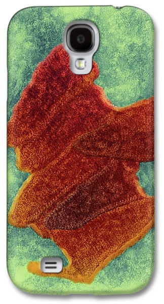 Bovine Ephemeral Fever Virus Galaxy S4 Case by Ami Images