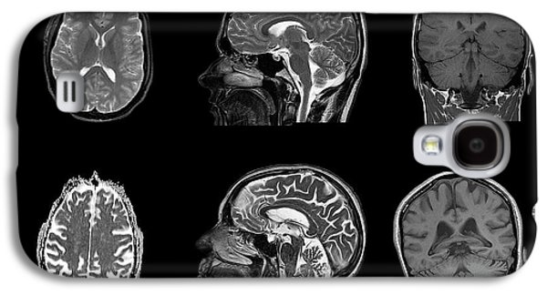 Brain Changes With Ageing Galaxy S4 Case